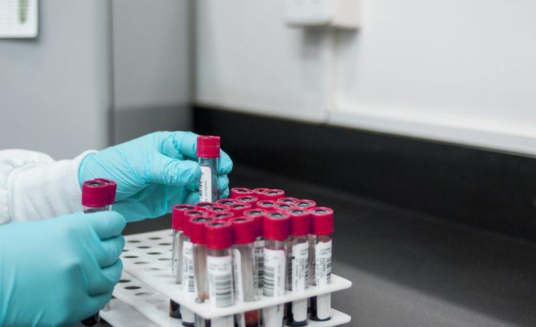 caso coronavirus negativo sospetto umbria cronaca
